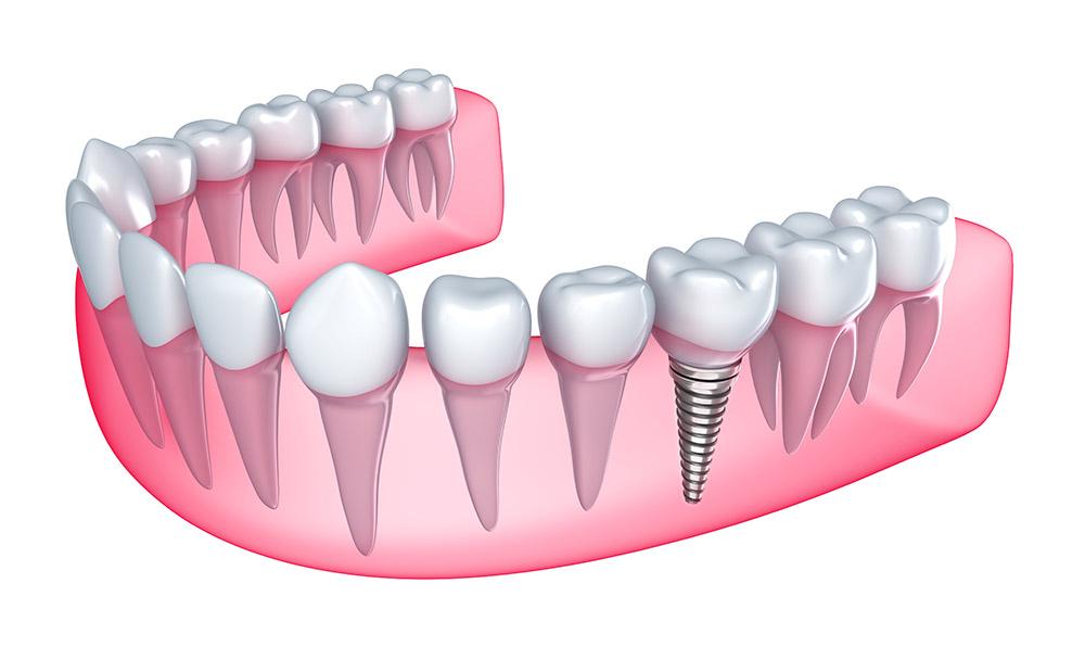 tratamiento implante dental en sevilla