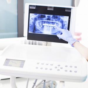 Tratamientos dentales Sevilla