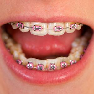 Ortodoncia Infantil adultos