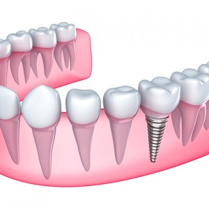 tratamiento implante dental en sevilla