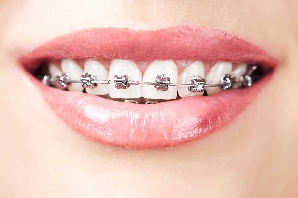 tratamiento de ortodoncia fija brackets