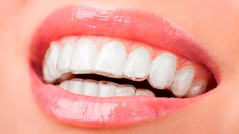 Ortodoncia invisible dentista sevilla