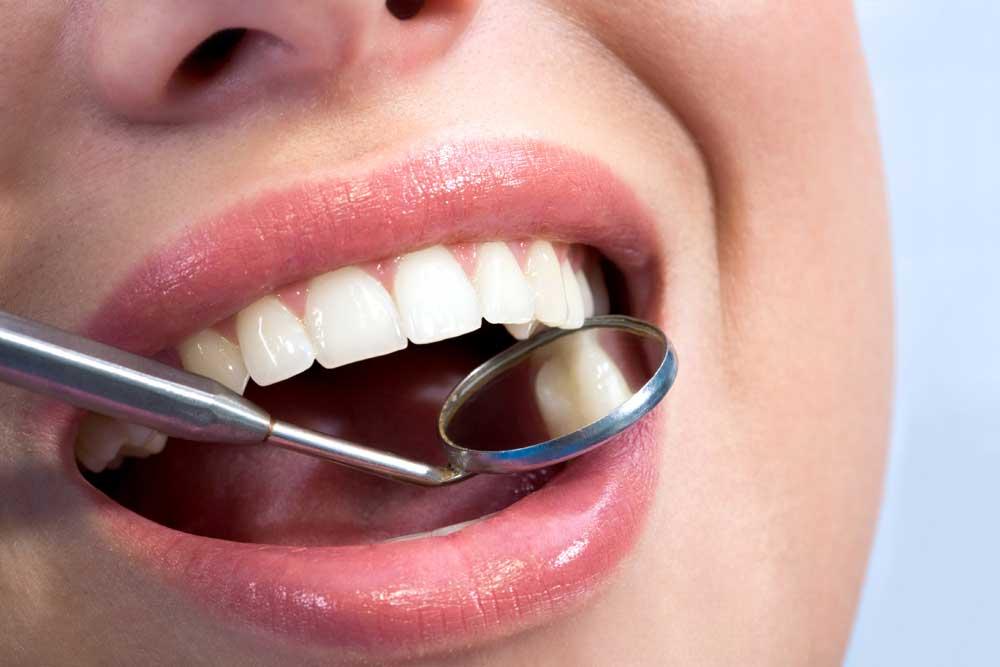 revisión anual dentista sevilla